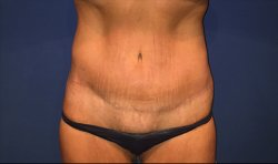 Manhattan abdominoplasty after 16